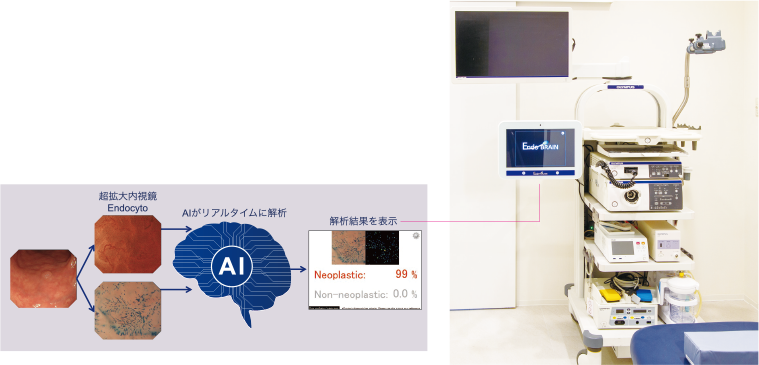 AI内視鏡